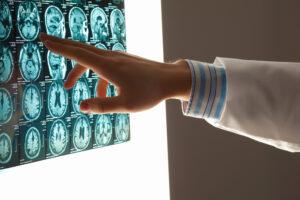 Brain Contusion Lawyer Denver, CO